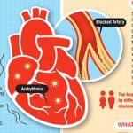 Know The Difference: Cardiac Arrest and Heart Attack